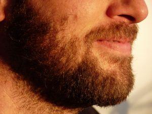 Segíthet- e a fogyás a hirsutizmust